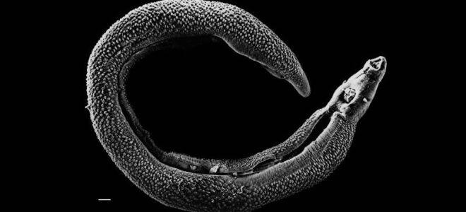 Методы очищения организма от паразитов