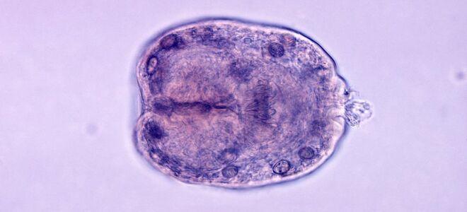Что такое эхинококк, жизненный цикл и пути заражения паразитом