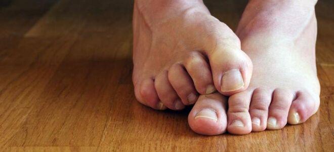 Как можно удалить ноготь на ноге при грибке