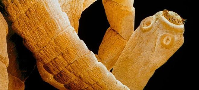 Что такое гименолепидоз или как лечить карликового цепня?