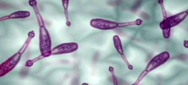 Что такое эхинококкоз, его симптомы и лечение