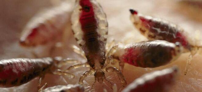 Какие бывают вши: виды паразитов