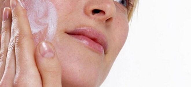 Купероз лица лечение в домашних условиях