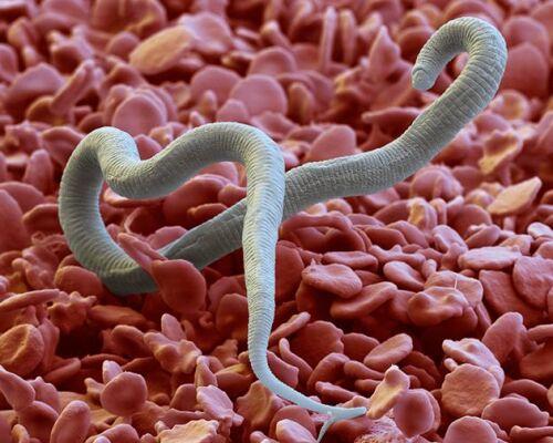 Как происходит лечение Дирофиляриоза у людей