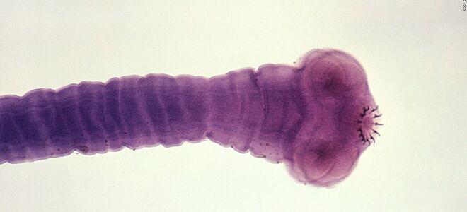 Как выглядит червь солитер, признаки инвазии и лечение