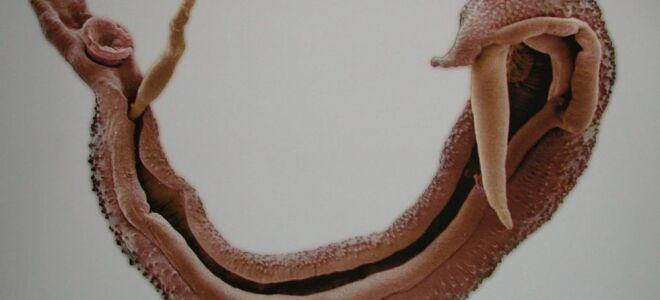 Симптомы и лечение шистосомоза