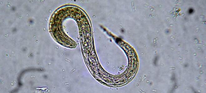 Что такое стронгилоидоз, причины возникновения и лечение болезни