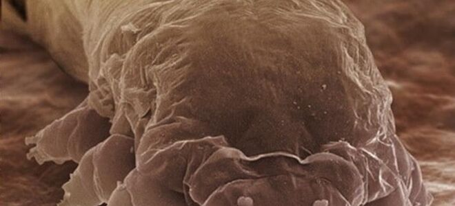 Жизненный цикл демодекса и как выглядит подкожный клещ