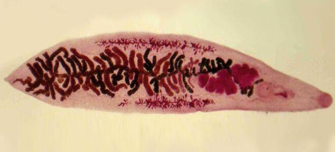Причины развития дикроцелиоза у человка