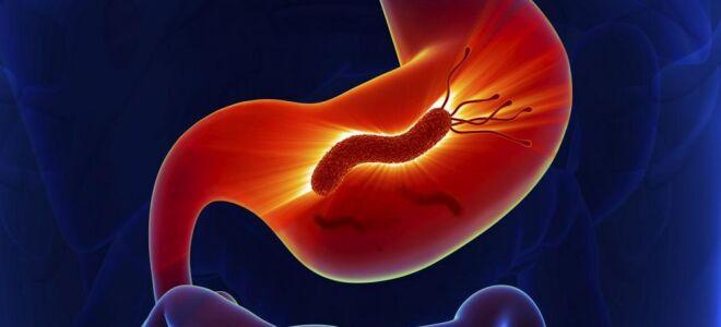 Бактерия хиликобактер пилори: симптомы и лечение