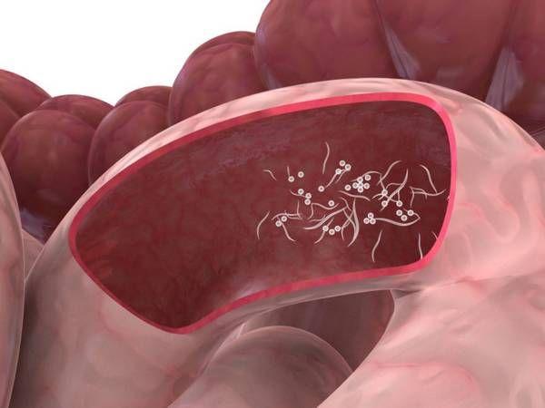 Как вылечить энтеробиоз дома?