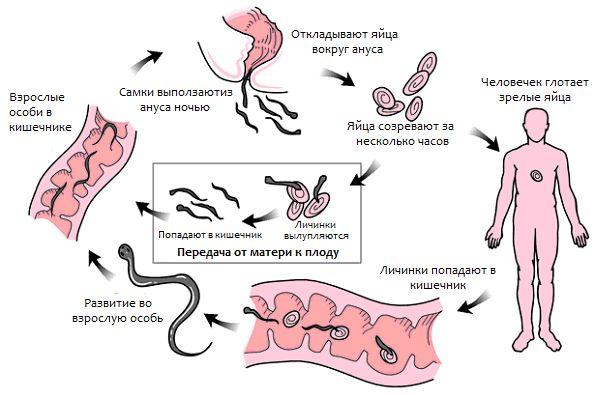 puti-zarazheniya-enterobiozom-02