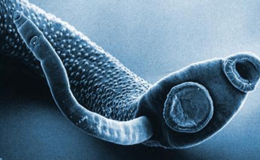 паразиты в теле человека фильм