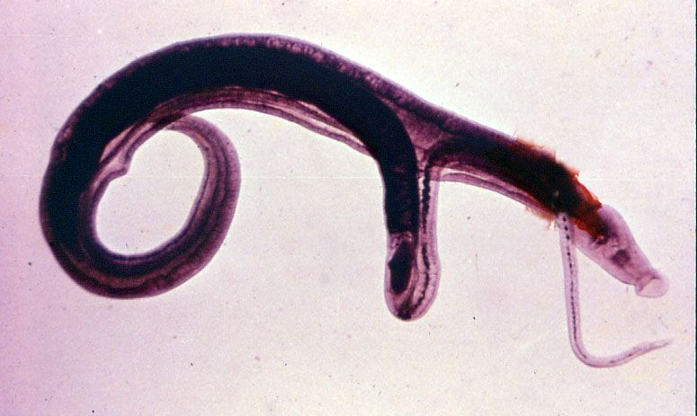 thesis about schistosomiasis Schistosomiasis, also known as snail fever and bilharzia, is a disease caused by parasitic flatworms called schistosomes the urinary tract or the intestines may be infected symptoms include abdominal pain, diarrhea, bloody stool, or blood in the urine.