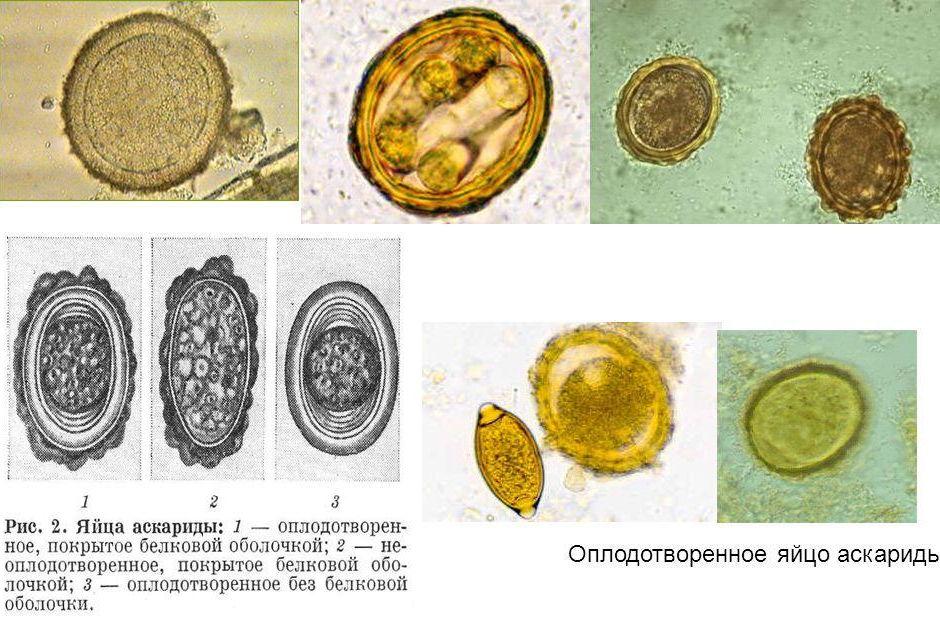 Яйца человеческой аскариды