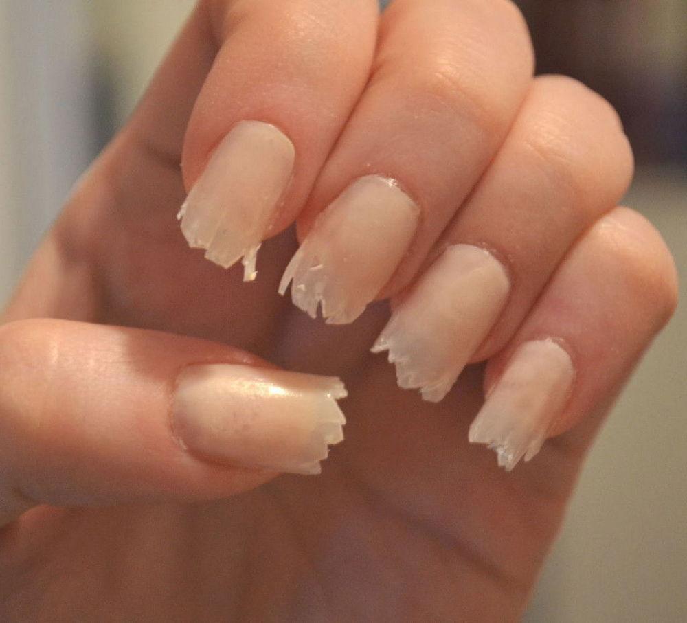 Грибы кандиды на ногтях фото