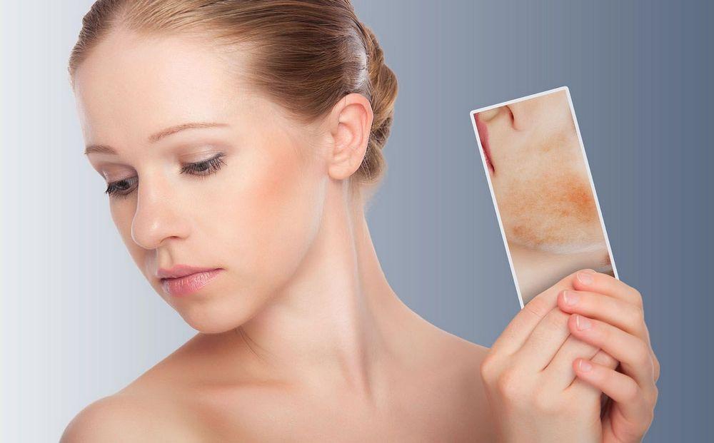 Чем лечить себорейный дерматит на лице у взрослого